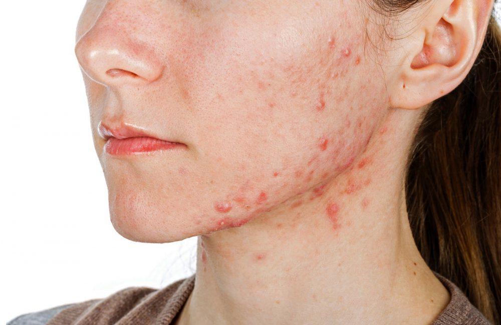 Stress sẽ gây viêm trên cơ thể, làn da dễ bị nổi mụn